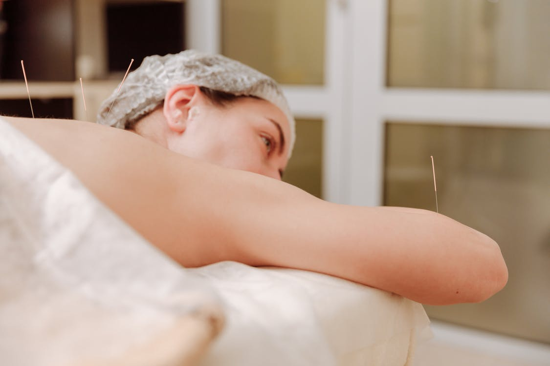 Benefits of Acupuncture Treatment